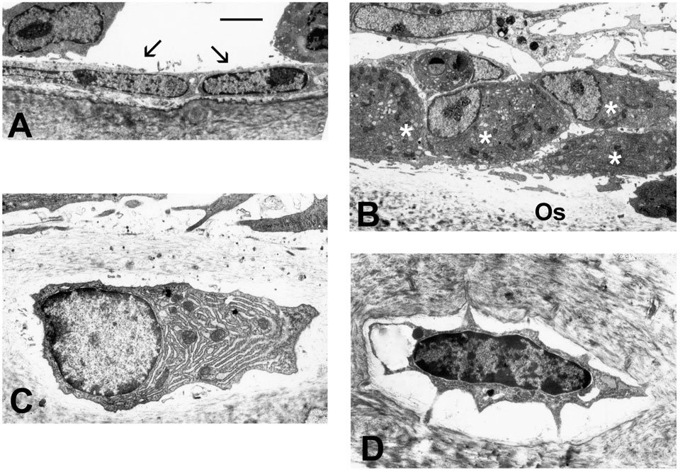 "TEM images show A) flat, inactive bone lining cells which cover bone surfaces when bone formation is not activated. B) shows active, plump osteoblasts actively synthesizing bone and depositing bone matrix (osteoid: OS) beneath them. C) Some osteoblasts become encased within the bone matrix and are then called osteocytes. The abundant endoplasmic reticulum indicates that this is an osteogenic osteocyte still actively synthesizing bone. D) And osteolytic osteocyte has begun to degrade the surrounding bone as part of the remodeling process. (see Odgren, PR, et al. 2004. ""Bone Structure,"" in Encyclopedia of Endocrine Diseases, L Martini, ed. Vol. 1:392-400. Academic Press, San Diego.)"