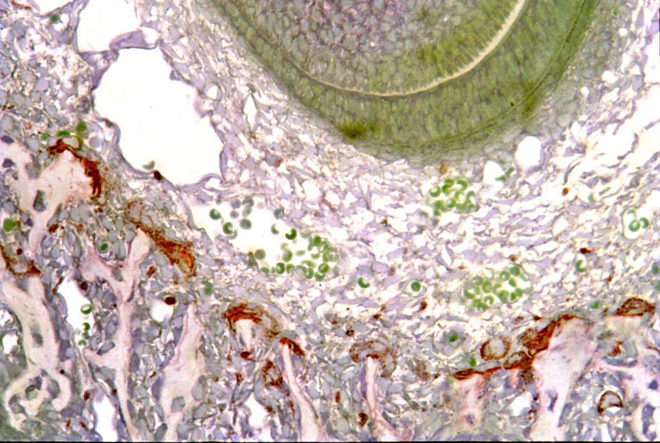 Three day old mouse mandible shows growing incisor root – greenish crescent, upper right, surrounded by the dental follicle of loose connective tissue. Outside that are mandibular bone trabeculae with TRAP (red) stained osteoclasts perched on their ends actively resorbing bone to make space for the rapidly growing tooth. Glycol methacrylate section counterstained with toluidine blue. (see Odgren, et al., Connective Tissue Research 44(suppl 1):264-271).