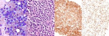 Diffuse large cell lymphoma