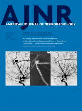Hemodynamic Characteristics of Ruptured and Unruptured Multiple Aneurysms at Mirror and Ipsilateral Locations
