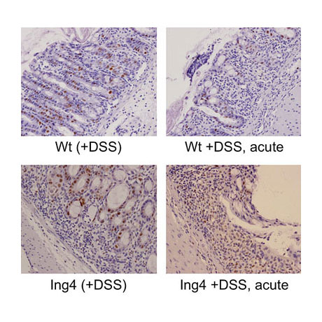 Modelling inflammatory bowel disease in Ing4-null mice.