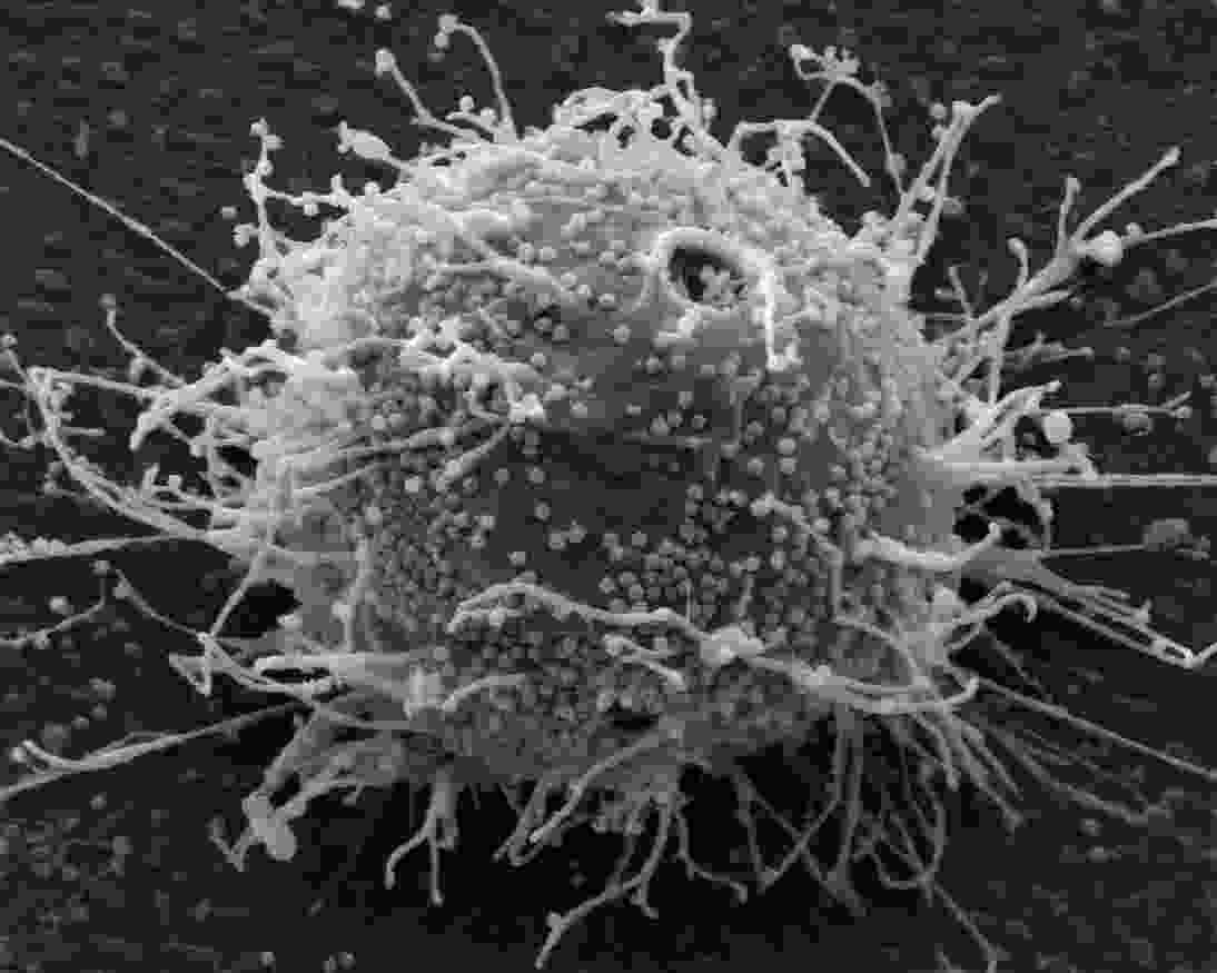 Hepes infected T-cell lymphoblastoid