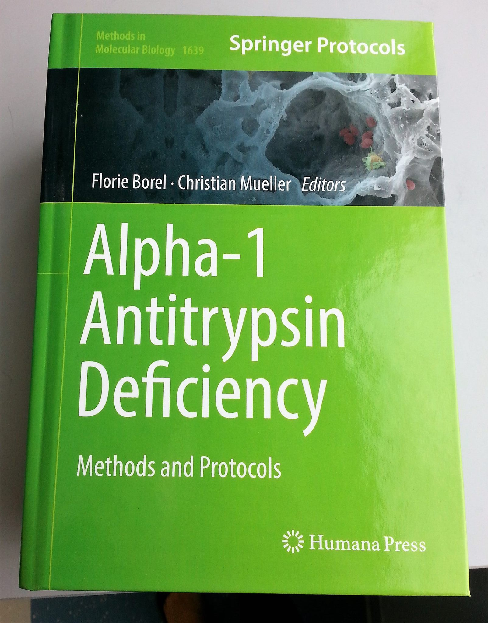 Alpha-1 antitrypsin deficiency methods protocols Springer Nature Borel Mueller