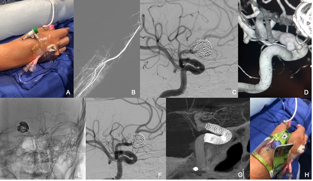 Distal radial access in the anatomical snuffbos for neurointerventions