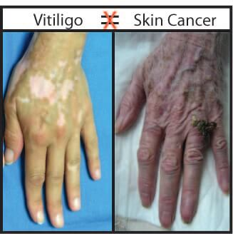 I Have Vitiligo Will I Get Skin Cancer Vitiligo Clinic Research Center