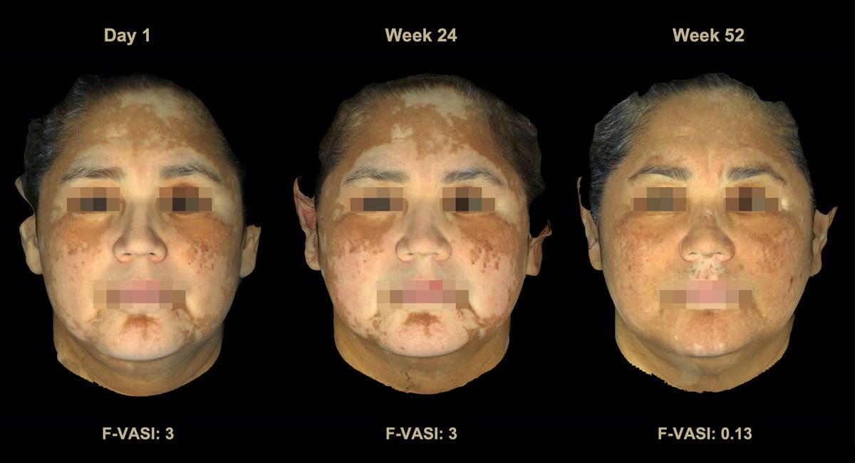 Incyte Topical Ruxolitinib Phase Ii Trial 52 Week Results