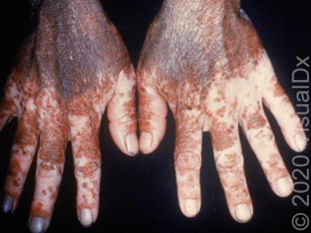 Maybe It S Not Vitiligo