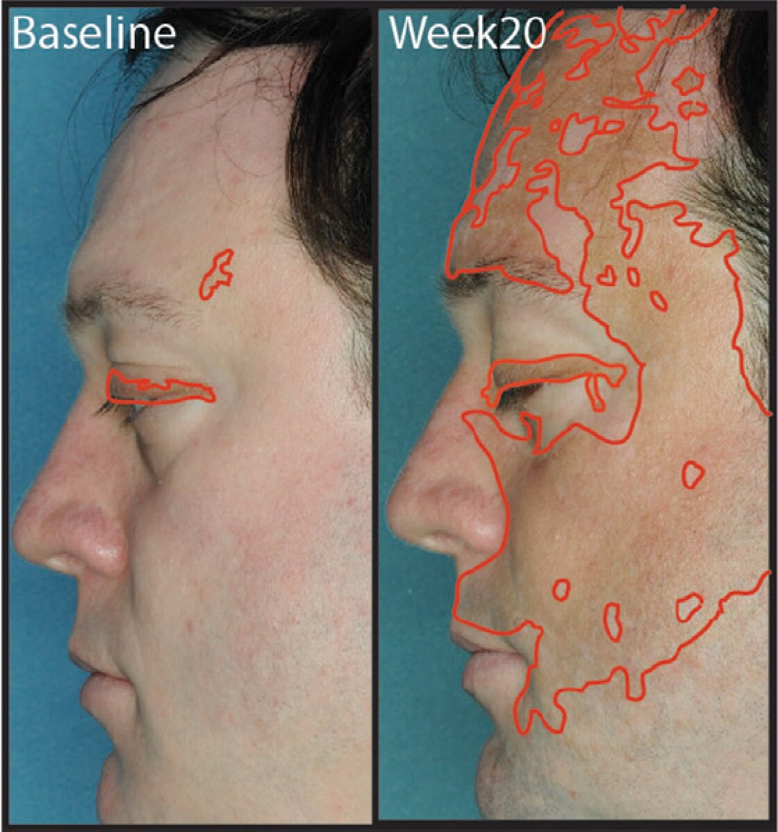 Jakafi treatment result for vitiligo