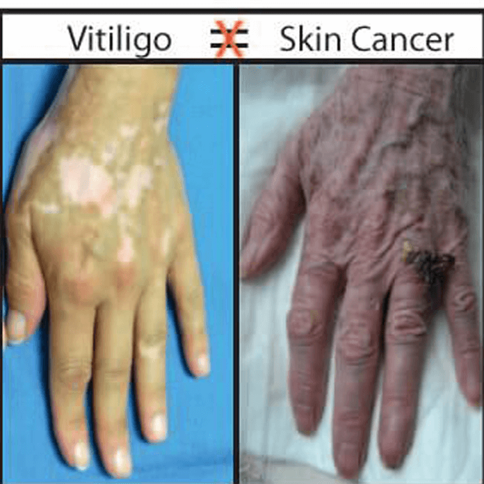 I Have Vitiligo Will I Get Skin Cancer Vitiligo Clinic Research Center