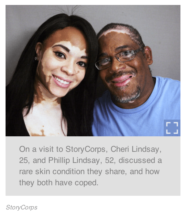 Will My Children Family Get Vitiligo Speaking About Vitiligo Blog