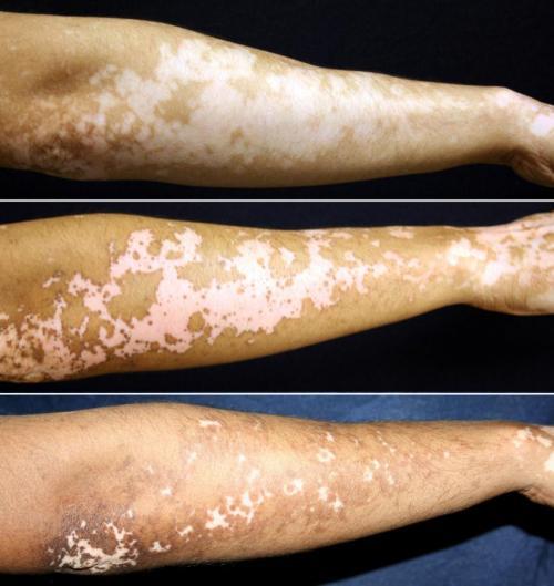 Afamelanotide Tested As A New Treatment For Vitiligo