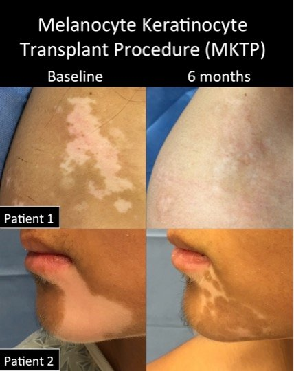 MKTP before-after