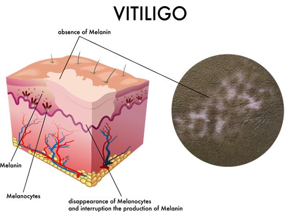 Vitiligo Treatments – UMass Medical Vitiligo Research Center & Clinic
